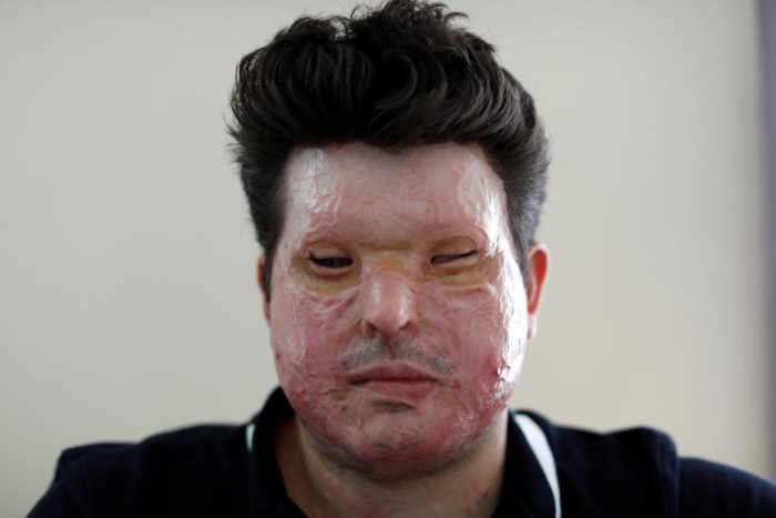 Outside The US: The UK Acid Attacks